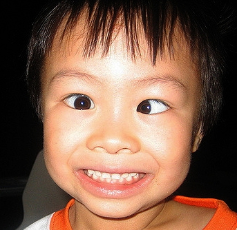 This child has esotropia.