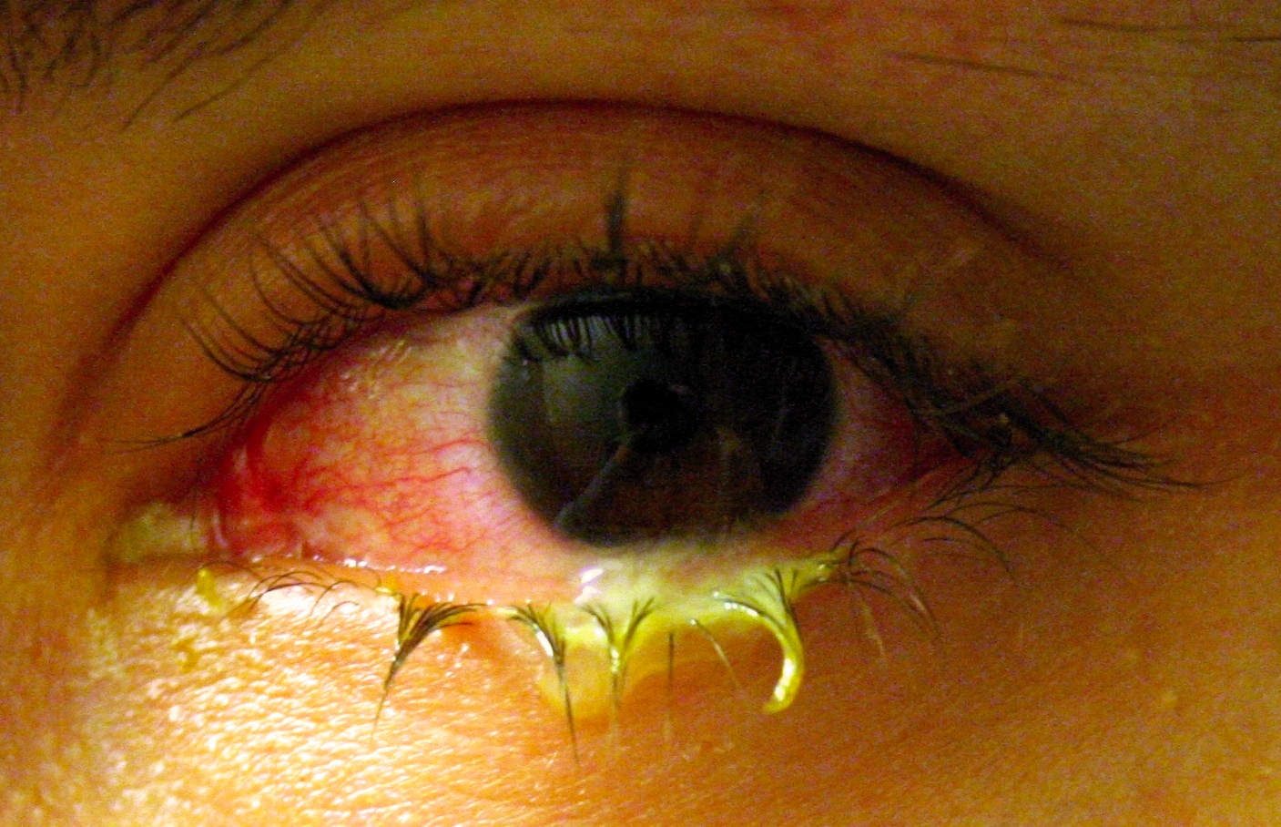 The significant, pus-like discharge associated with this conjunctivitis is suggestive of a bacterial infection.