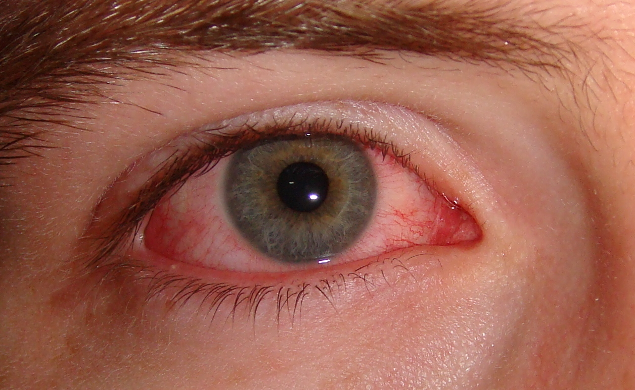 The moderate redness of the eye, combined with the minimal apparent discharge, means this is likely allergic conjunctivitis (if the eyes are significantly itchy) or viral conjunctivitis.