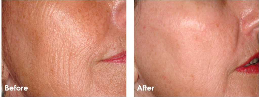 Fractional-Skin-Resurfacing-Before-After-1-1024x387.jpg