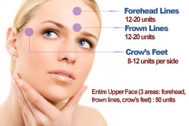 Infographic: About how many units of Botox do I need?