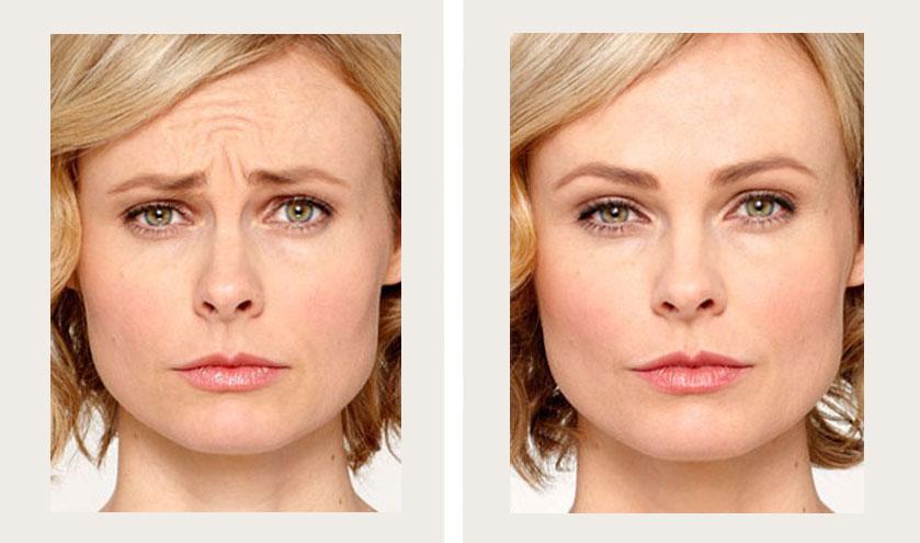 Botox: Beautiful Results in a Week