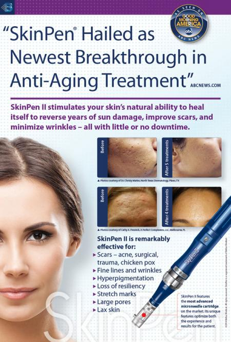 Infographic: Many Ways SkinPen Microneedling Helps You Look Your Best