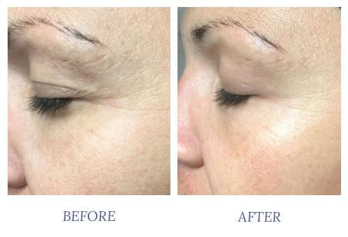CO2Lift Oxygen Facial: Amazing Results with Zero Downtime