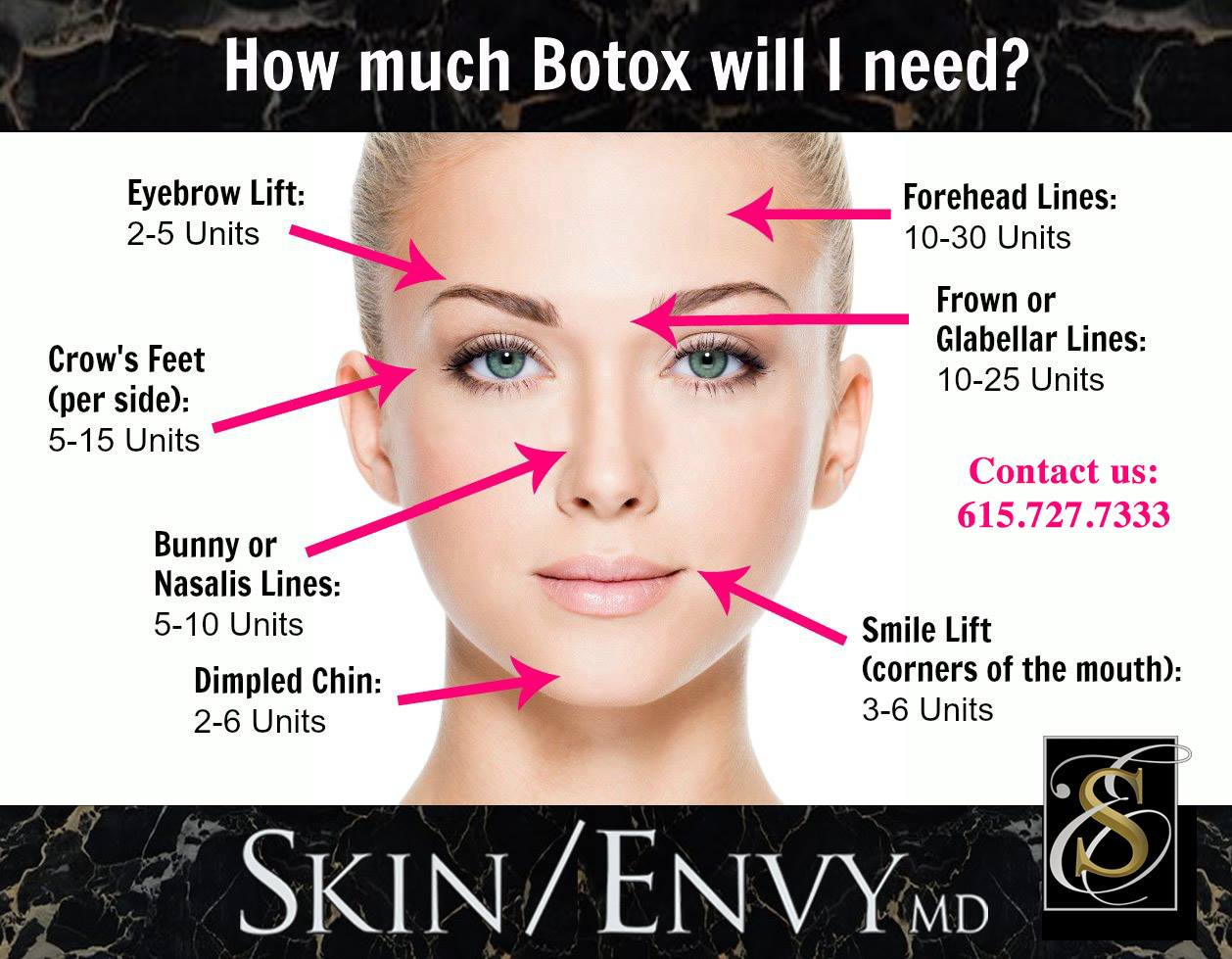 How Much Botox Will I Need - by Skin Envy MD Nashville.jpg