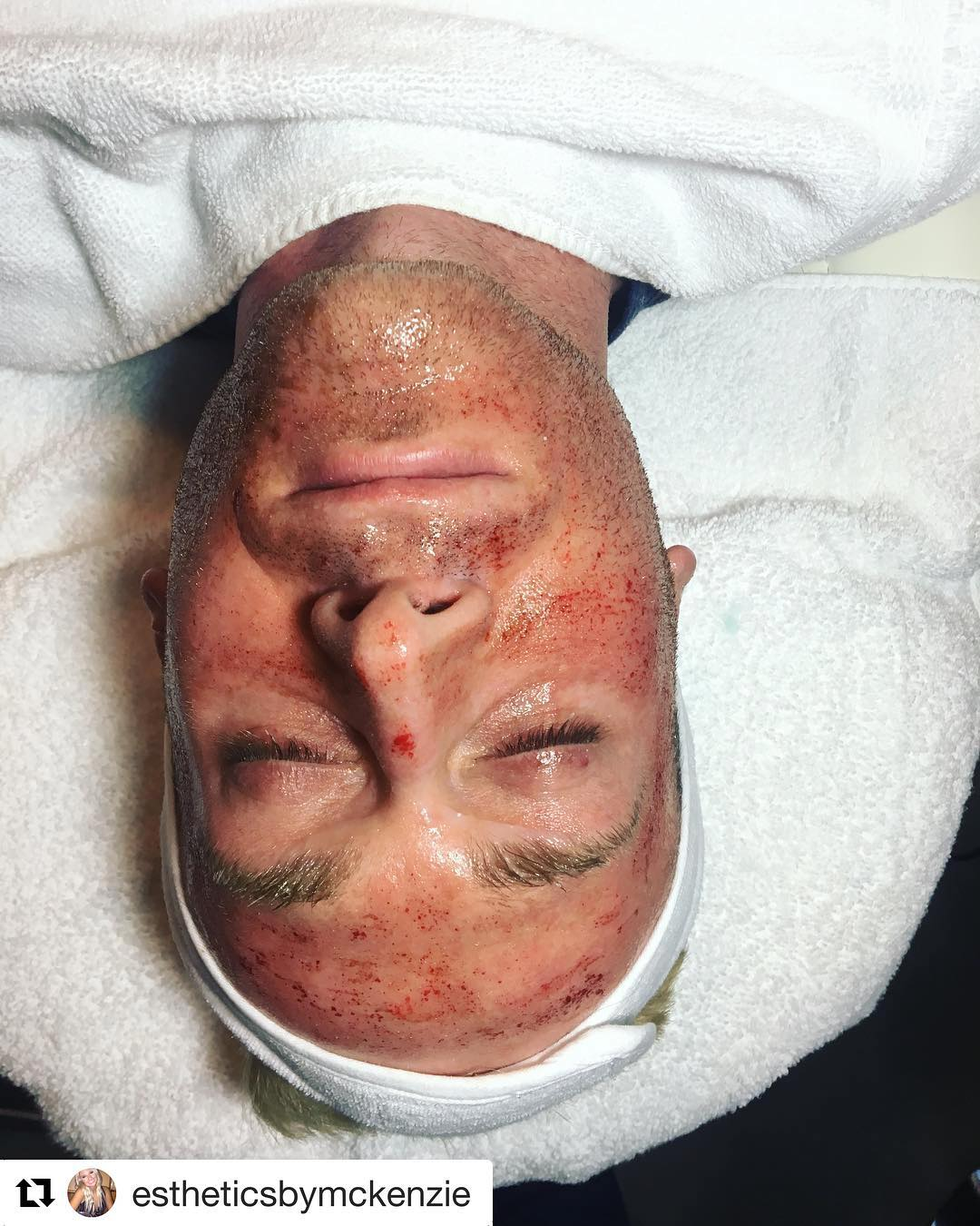 Microneedling Man - by Skin Envy MD Nashville.jpg
