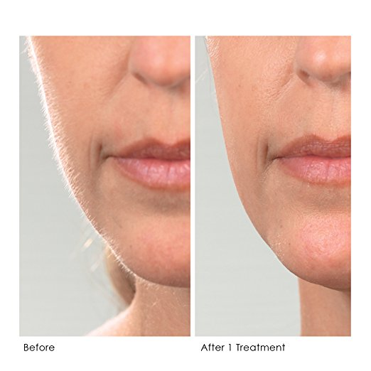 Dermaplaning: Beautiful results with zero downtime.