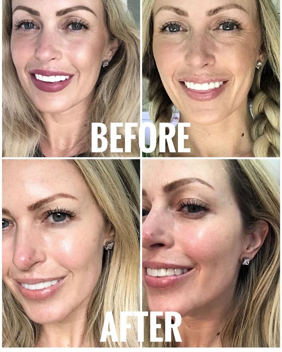 Here are some amazing Botox before & afters from one of our favorite clients These are self-provided, original and unretouched photos.
