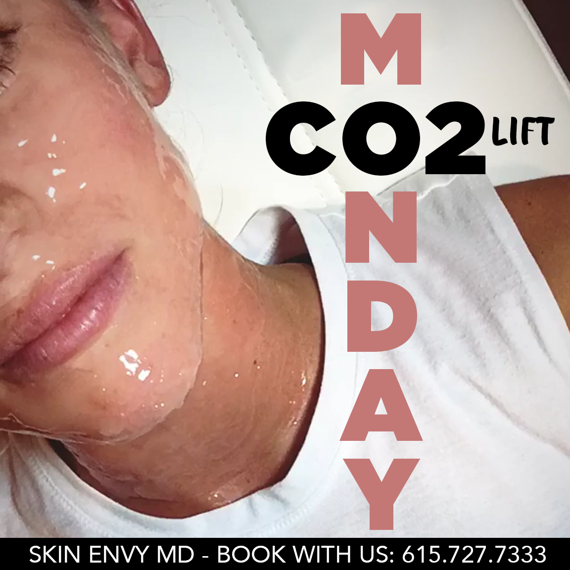CO2 Lift Monday - Skin Care by Skin Envy Nashville.png