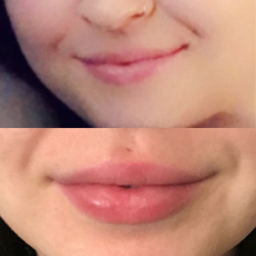 New Lips - Juvederm Restylane Dermal Fillers by Skin Envy MD Nashville.jpg