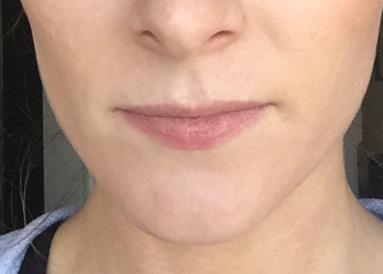 lip before.JPG
