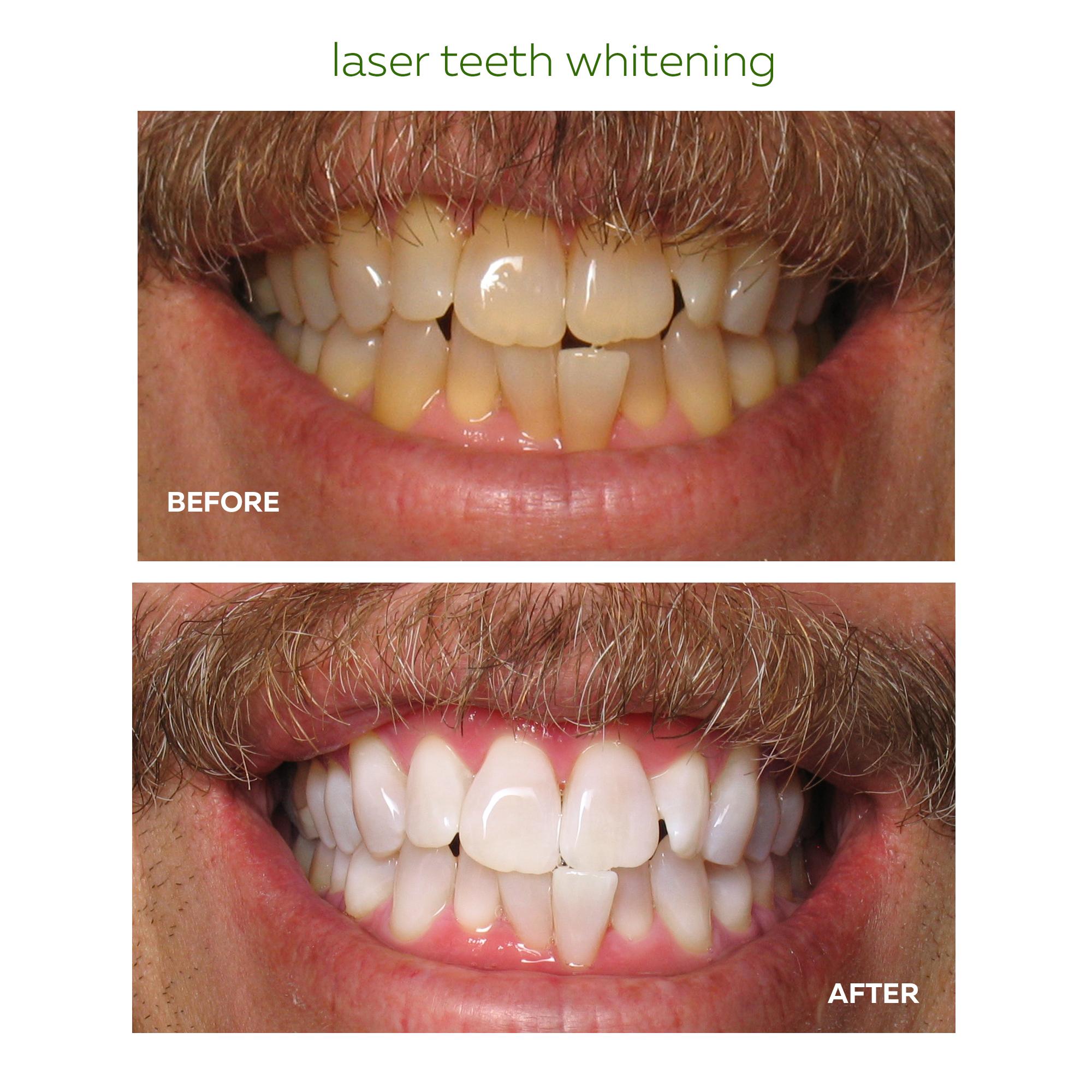 laser bleach.jpg