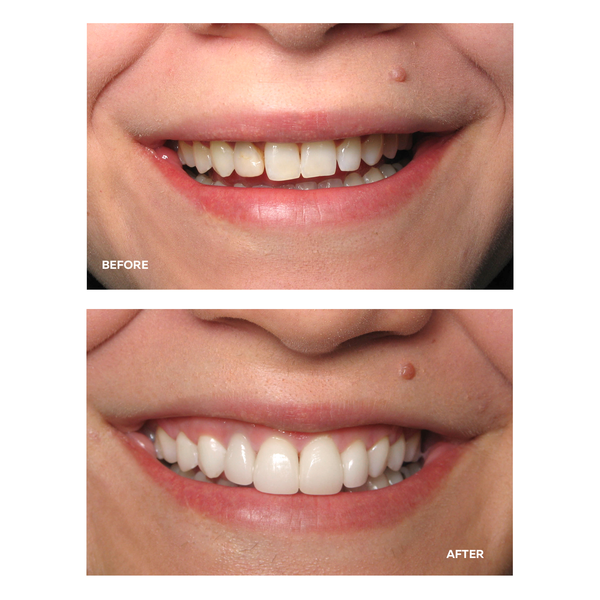 Veneers Before and After.jpg