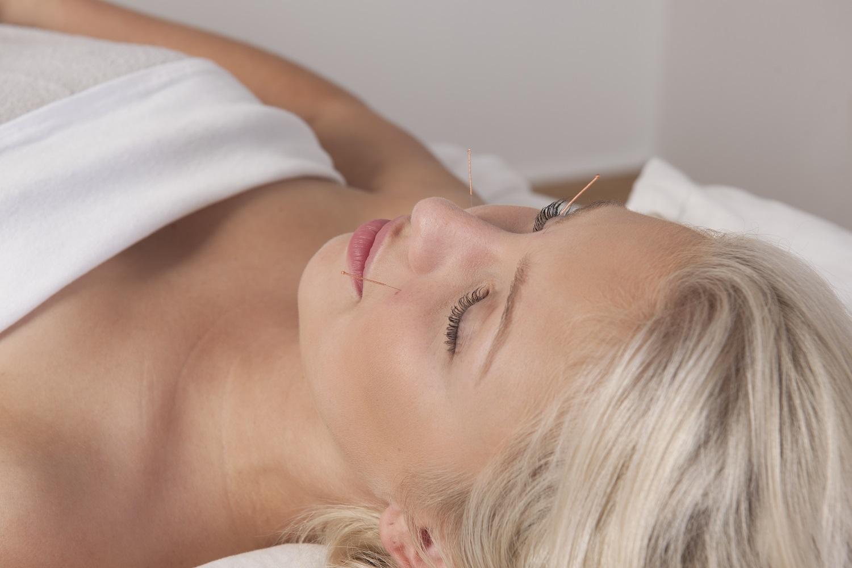 Acupuncture    Manon Larochelle   20 ans d'expérience en santé |Sorel-Tracy     Prendre rdv