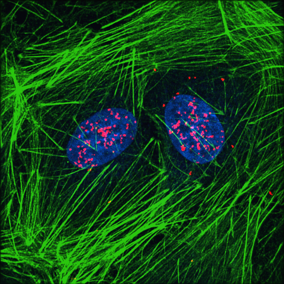 Proximity Ligation Assay in TGF-treated NRK49F fibroblasts showing YAP-Smad nuclear complexes (red) in cells co-stained with phalloidin (green) and DAPI (blue).