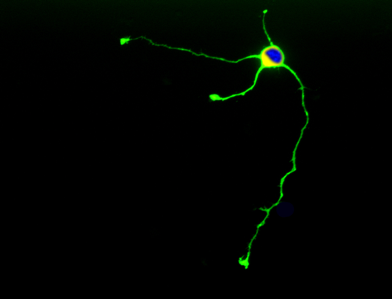 A GFP-expressing neuron isolated from E16 embryo.