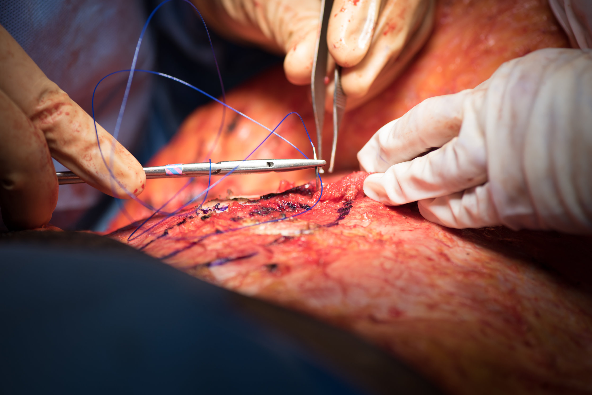 a day in the life of a plastic surgeon, behind the scenes plastic surgery, what does surgery look like, hz plastic surgery