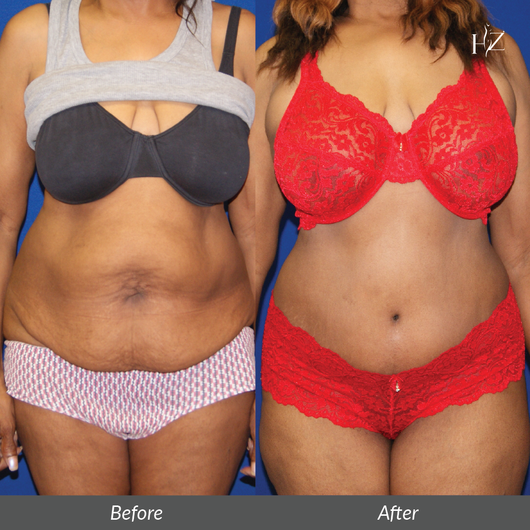 tummy tuck before and after orlando, hz plastic surgery