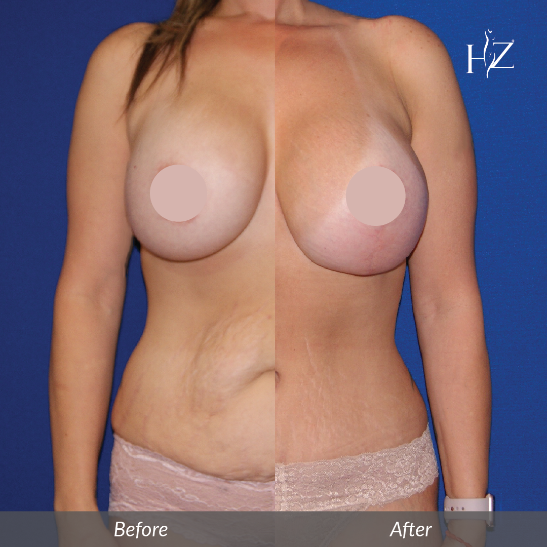 mommy makeover orlando, before and after orlando, hz plastic surgery