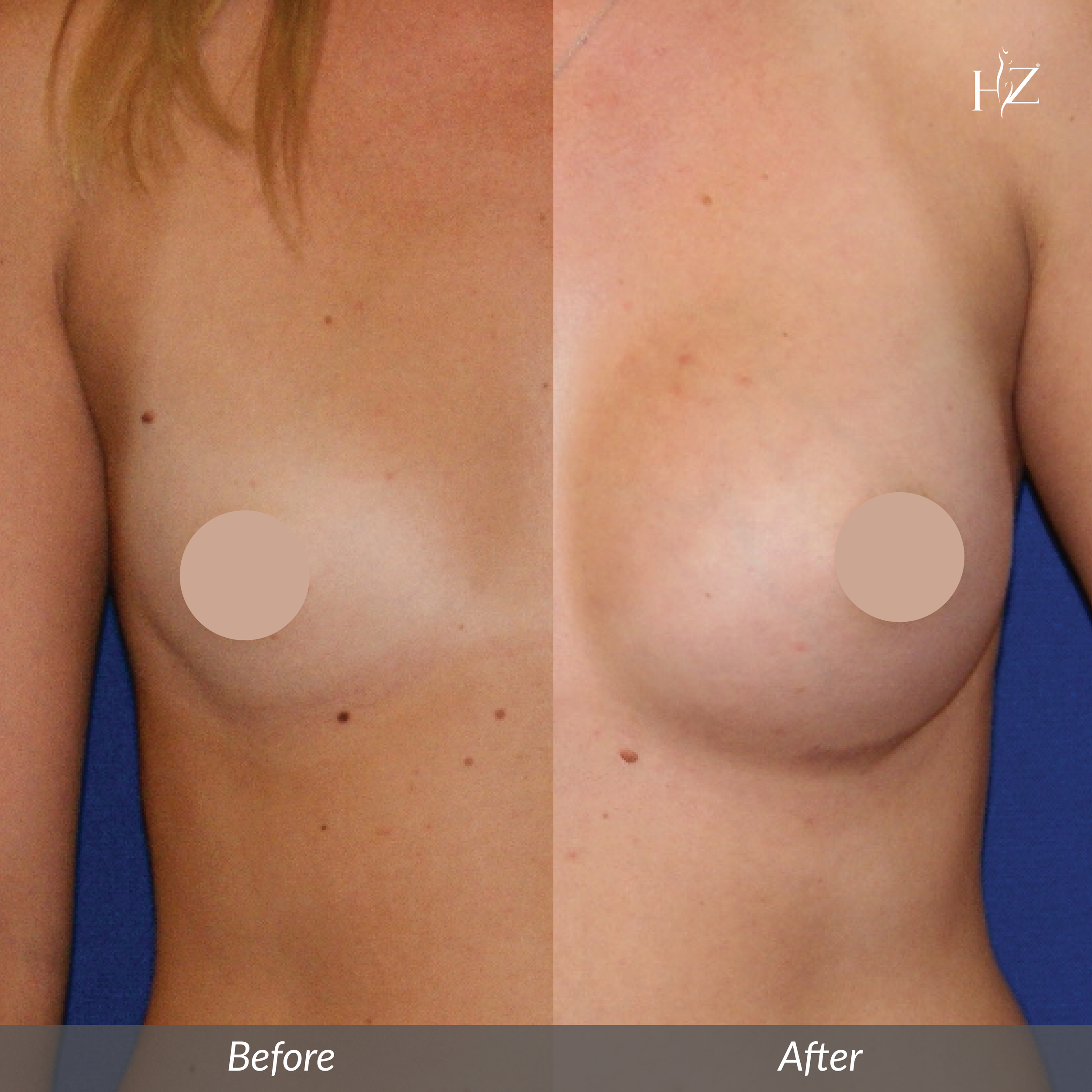 breast augmentation orlando, breast augmentation before and after, hz plastic surgery