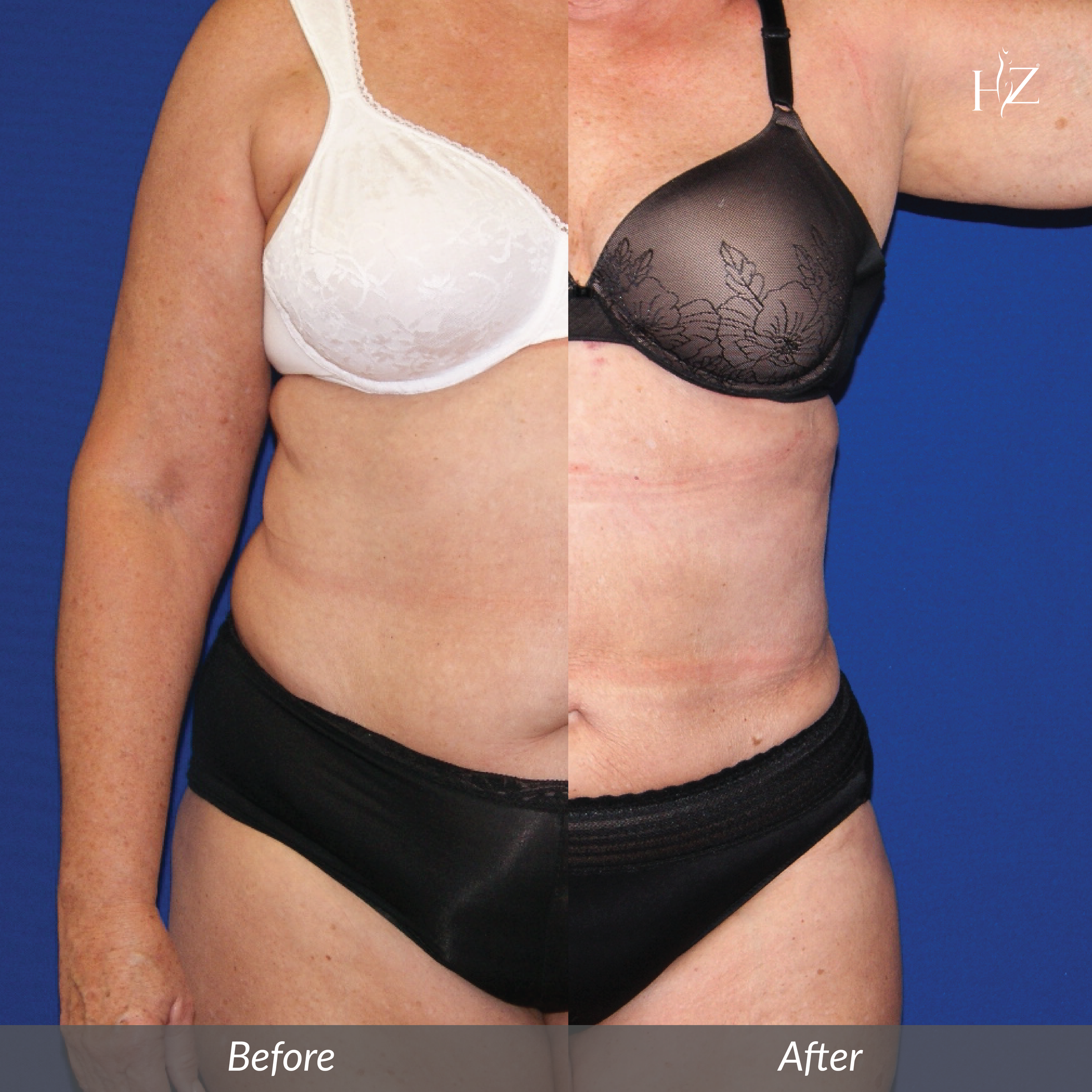liposuction orlando, liposuction before and after, hz plastic surgery