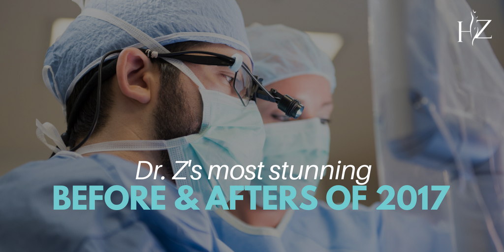 plastic surgery orlando, plastic surgeon orlando, plastic surgery before and afters