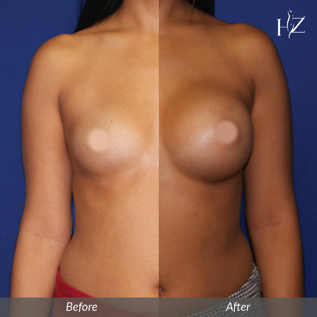 breast augmentation before and after, breast augmentation orlando, plastic surgeon orlando