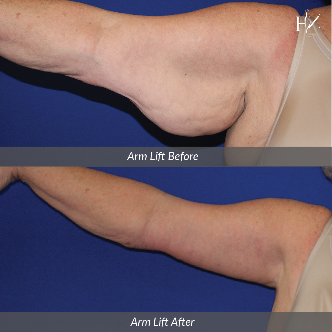 arm lift before and after, arm lift orlando, plastic surgeon orlando
