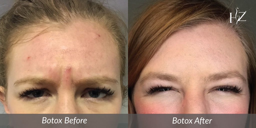 does botox hurt, botox injections, does work work