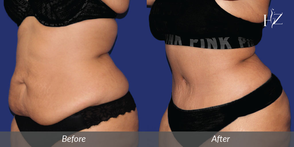 tummy tuck orlando, tummy tuck before and after
