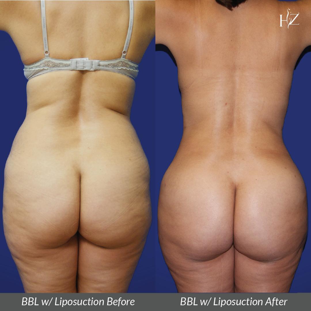brazilian butt lift before and after, brazilian butt lift orlando, plastic surgeon orlando, plastic surgery before and afters