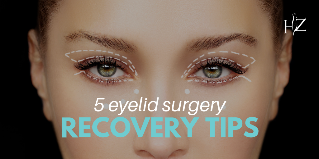 eyelid surgery recovery, blepharoplasty recovery