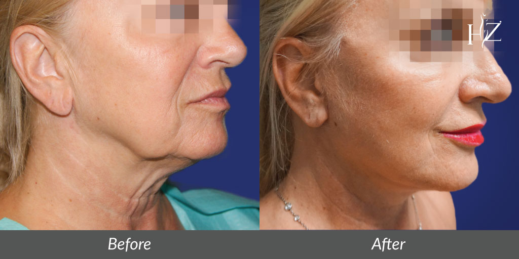 neck lift orlando, neck lift before after, neck lift surgery