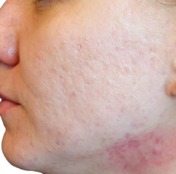 Before (Acne/Pores)