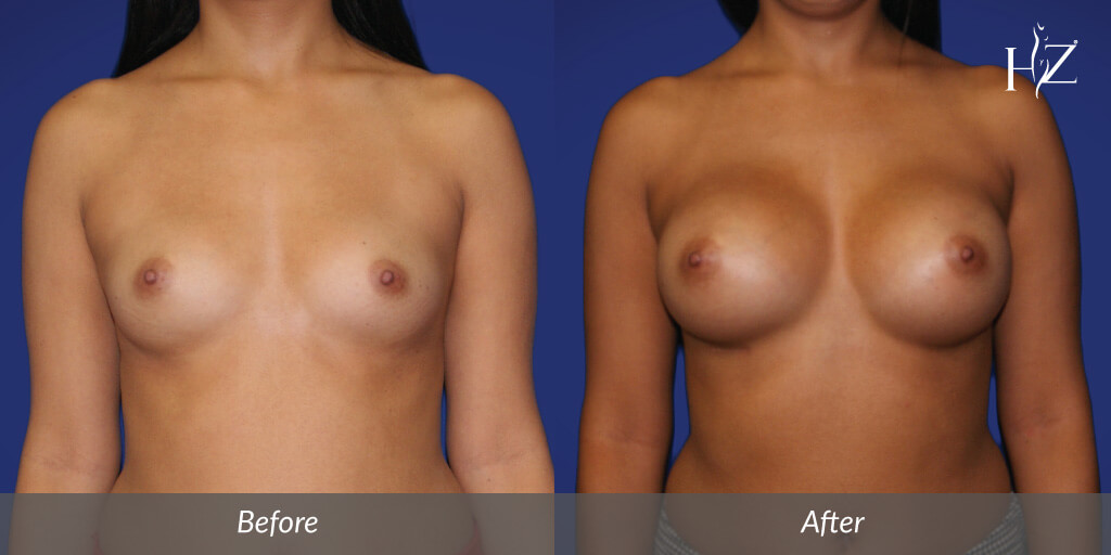 breast+augmentation+orlando,+breast+augmentation+before+and+after-1.jpg