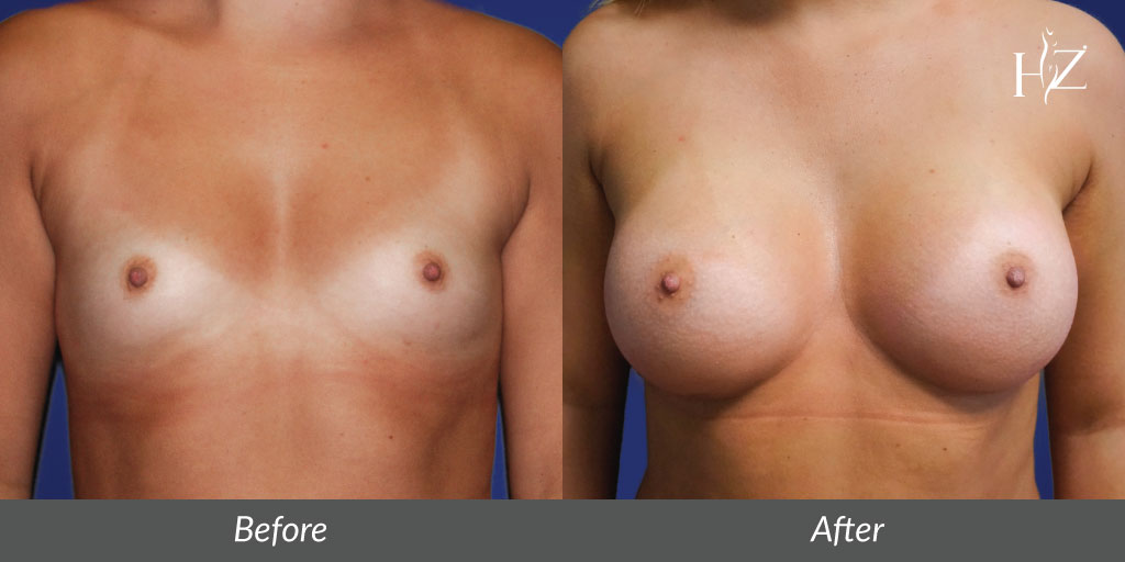 breast+augmentation+orlando,+breast+augmentation+before+and+after.jpg