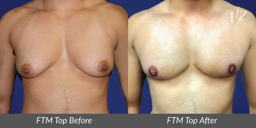 ftm+top+surgery+orlando,+female+to+male+top+surgery+orlando,+ftm+top+surgery+before+and+after.jpg