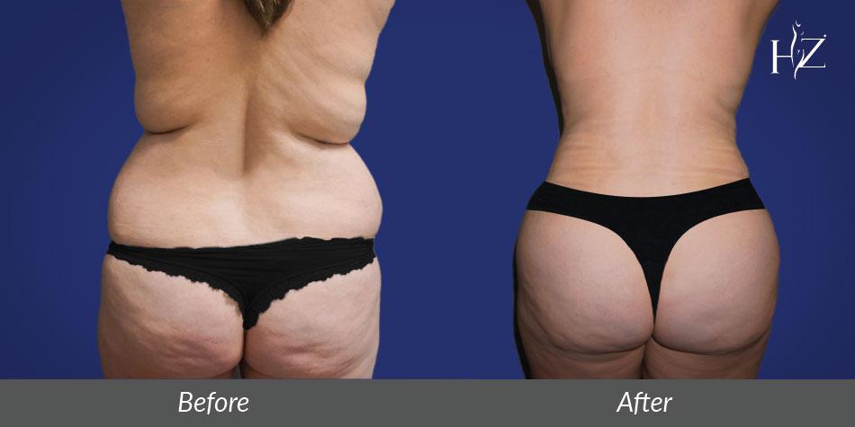 brazilian butt lift orlando, brazilian butt lift before and after