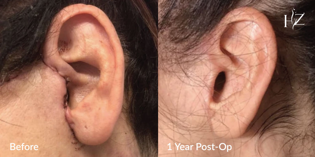 face lift in orlando, face lift before and after, face lift dr z