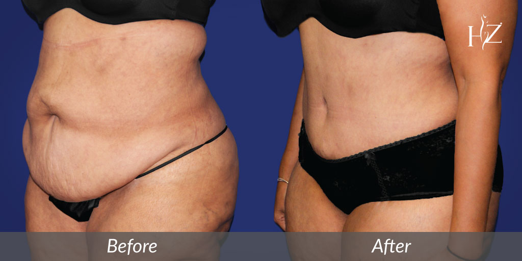 tummy tuck before and after, tummy tuck orlando, hz plastic surgery