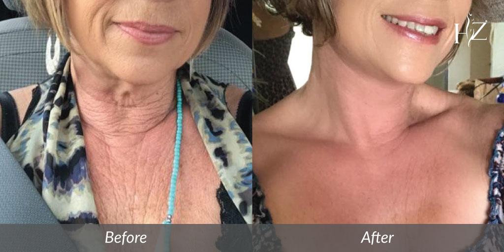 neck lift orlando, neck lift before after, neck lift surgery