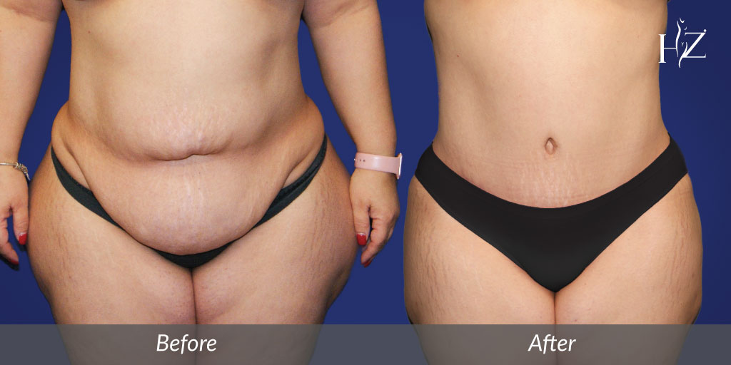 Tummy Tuck In Orlando By Dr  Z — HZ Plastic Surgery