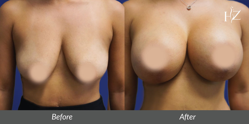 breast lift before and after, breast lift orlando