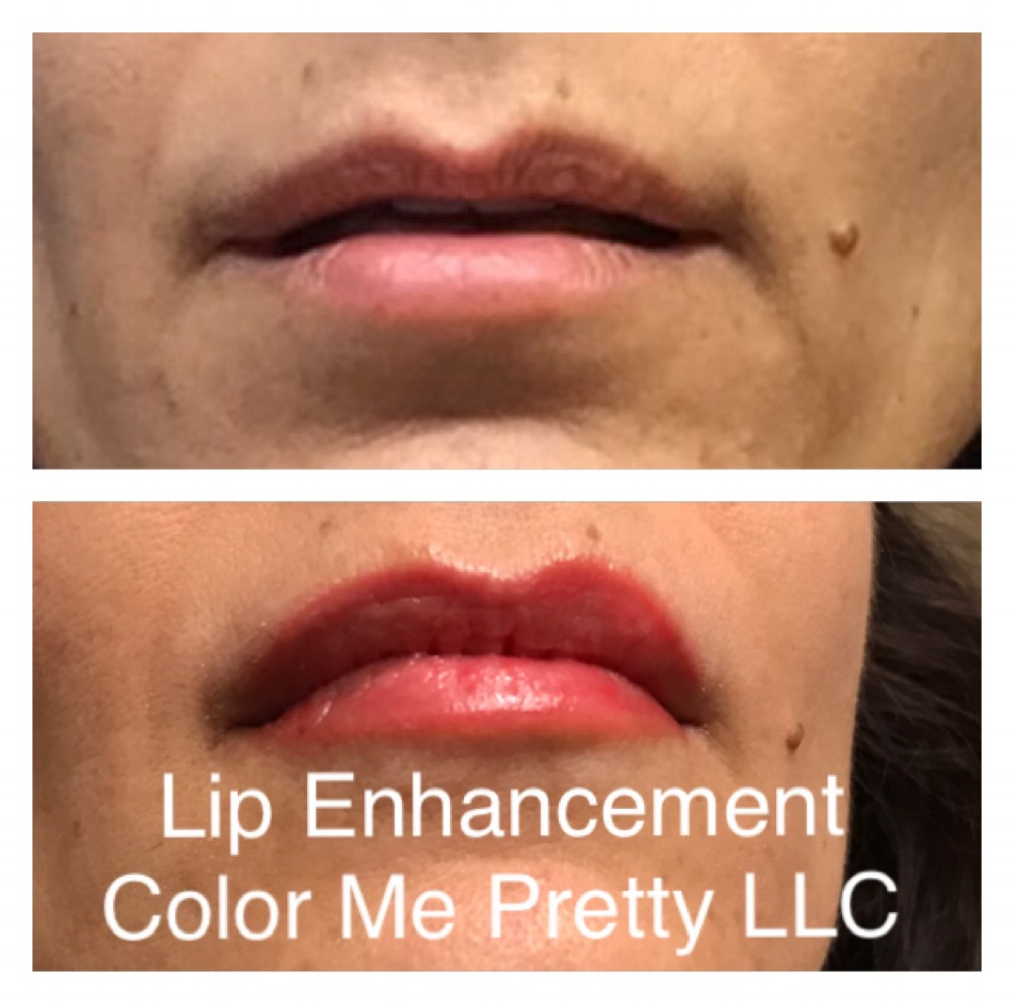 Before and After Lips by Jeannie
