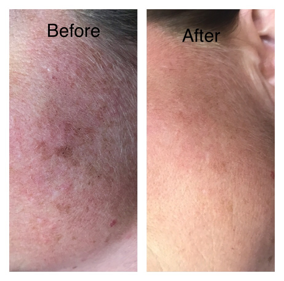 Before and After MicroPigmentation Used to Camoflauge Dark Spots by Jeannie (1st Treatment)