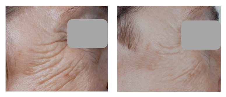 Before & After -  Skin Tightening treatment