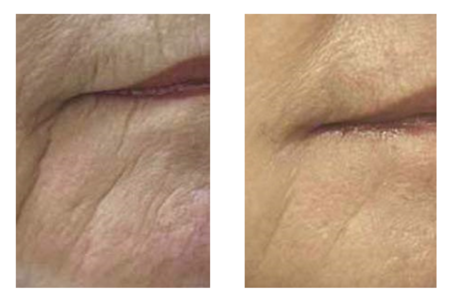 Before & After -   Skin Tightening
