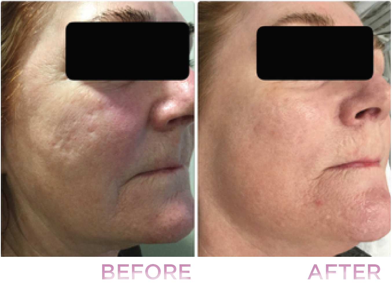 Before and after picture. Pictures were taken after two Fractional Laser Skin Resurfacing Treatments.