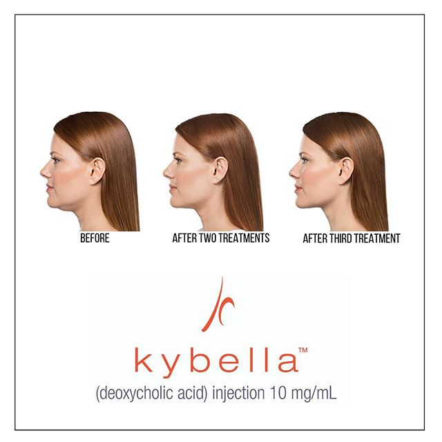 || KYBELLA || 💉 KYBELLA is the only FDA - approved injectable treatment that destroys fat cells in the treatment area under the chin to improve the profile. 💉 KYBELLA is done with multiple injections under the chin per treatment session; up to six treatments spaced at least one month apart. 💉 Deoxycholic acid is a naturally occurring molecule in the body that aids in the breakdown and absorption of dietary fat. When injected  into the fat beneath the chin, KYBELLA destroys the fat cells and once destroyed  these cells can no longer store or accumulate fat. 💉 The number of treatments vary patient to patient. A qualified injector will help determine how many treatment sessions you need based on the amount of submental fat and your personal treatment goals. • • • • • #thedermlabrx #kybella #doublechin #cosmeticinjector #phoenixinjector #chandlerinjector #gilbertinjector #dermalfillers #beforeandafters #filler #selfcare #antiaging #byedoublechin #nurseinjector #injectables
