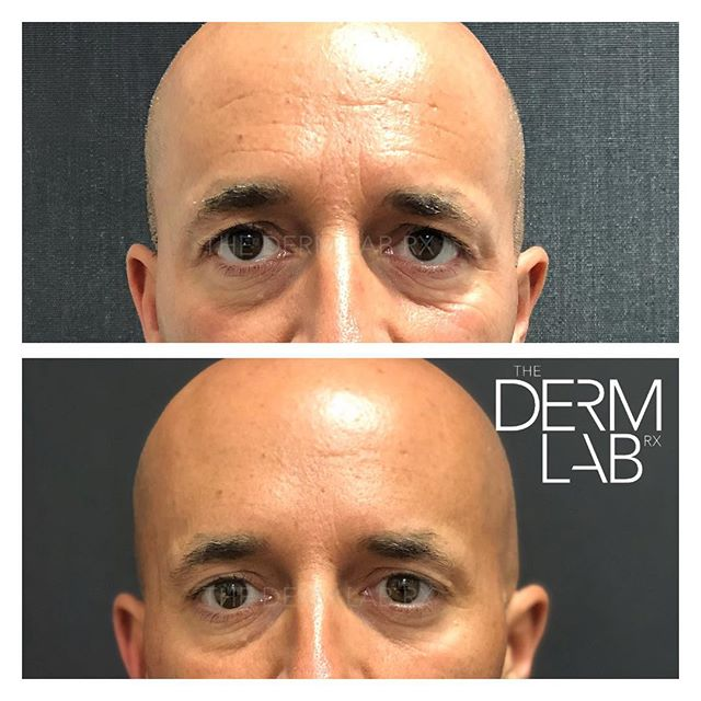 This gentleman desired a more open and friendly appearance as he was tired of being asked if he was angry or feeling grumpy. 😡😒🚫 • This refreshed result was accomplished with ➡️100 units⬅️of Botox! 💉 • There is a noticeable youthfulness to the eye region in his two weeks post treatment photo. His eyelids are now visible and greater symmetry was achieved to the brow region. The patient's forehead lines have also been minimized. Treatment to the crows feet region creates a lifted, youthful appearance to his eyes. • • • • • #thedermlabrx #gatherloft #phoenixinjector #botox #brotox #nomorewrinkles #antiaging #allerganambassador #nurseinjector #chandlerinjector #gilbertinjector #allergan #ocotillofriends #livingchandler #chandlerliving